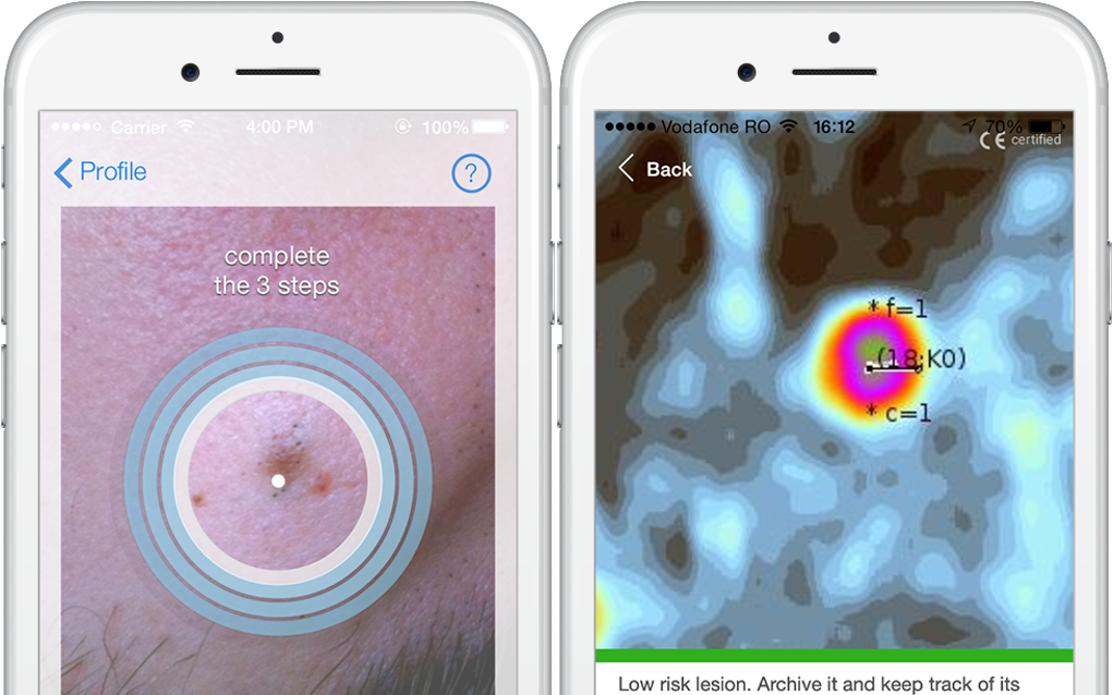 New Mobile App To Detect Skin Cancer By Skinvision Eindhoven News